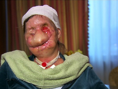 Charla Nash's face after the chimp attack