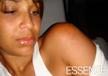 LisaRaye McCoy's injuries - the shoulder