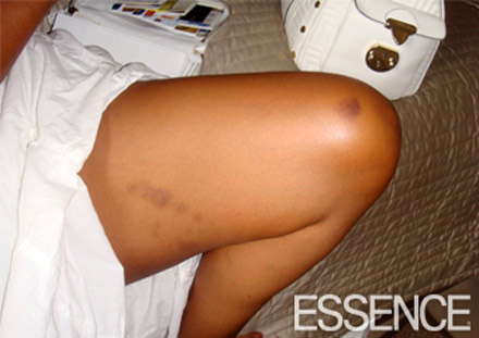 LisaRaye McCoy's injuries - the thigh