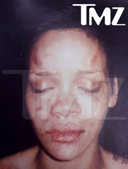 Rihanna / Chris Brown fight photo - the bumps and bruises